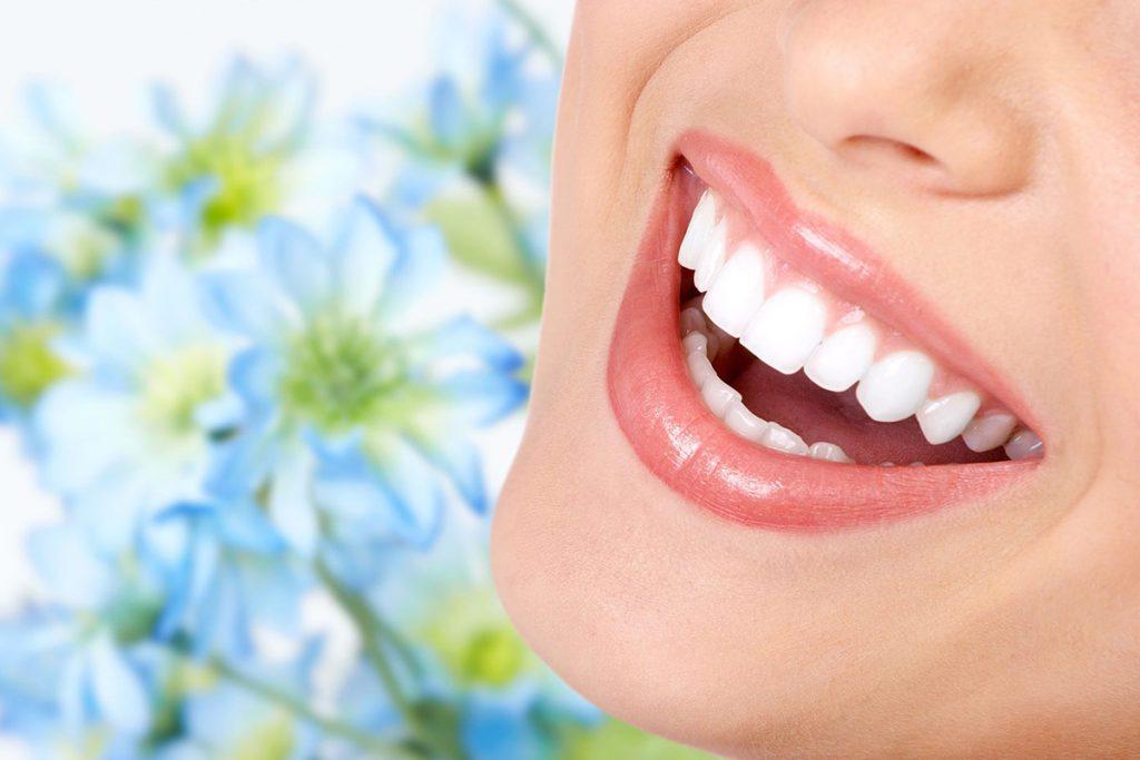 Виниры на зубы в стоматологии Радент